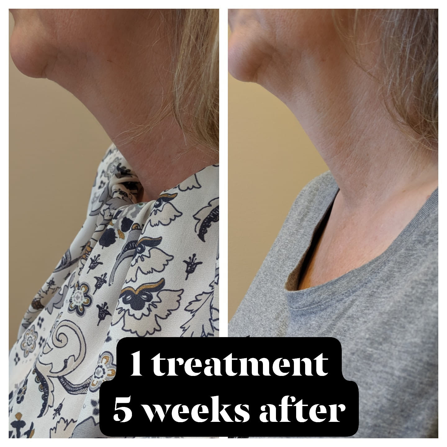 Submental, under the chin, before and after a truSculpt 3D body sculpting treatment