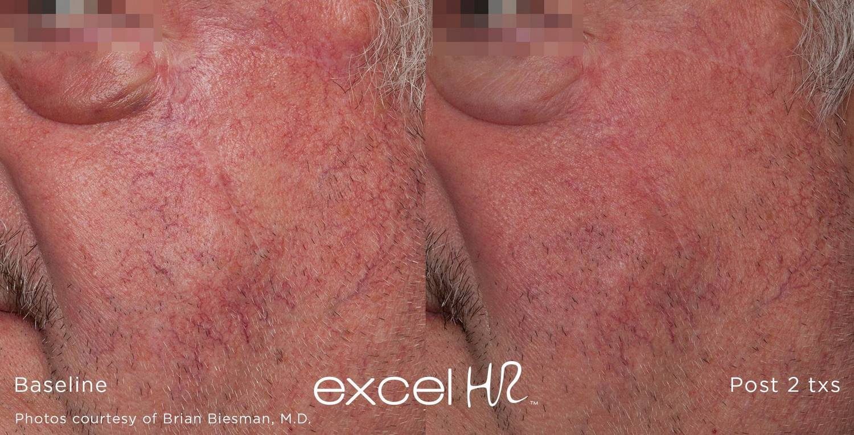 excel HR_Vascular_1.jpg