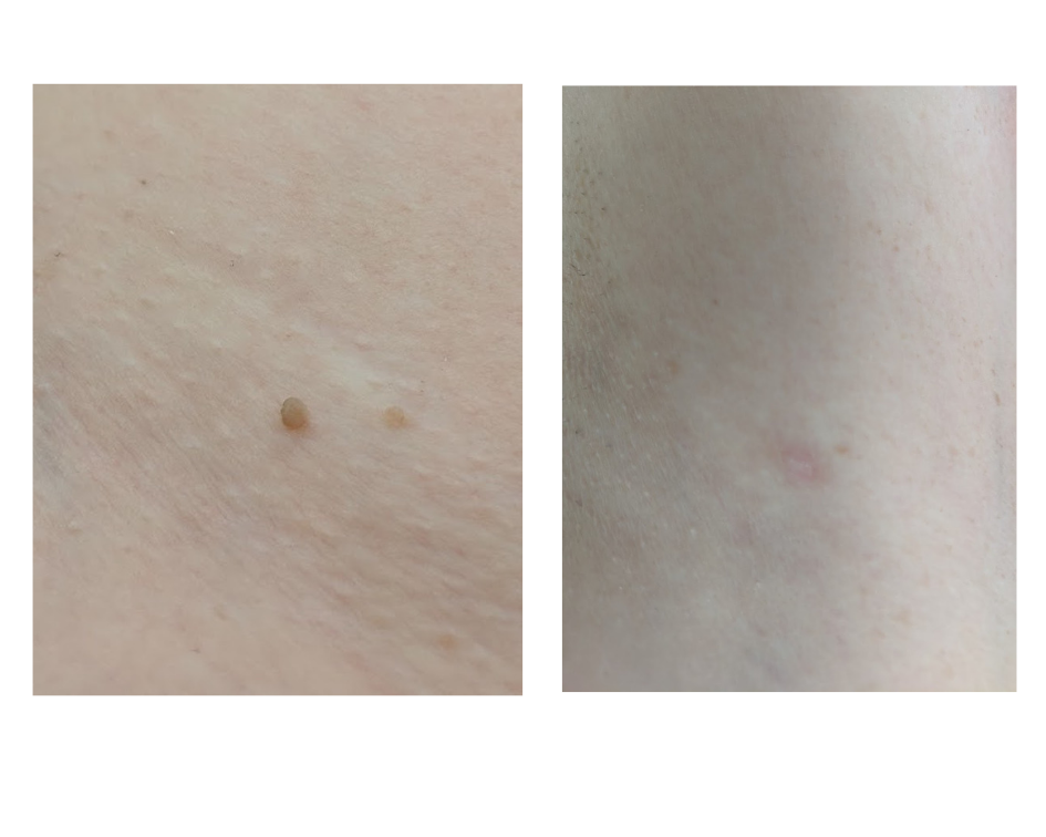 Left:skin tag before treatment. Right: after 1 treatment.