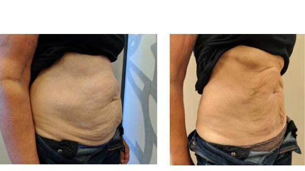 1 treatment, 8 weeks post treatment