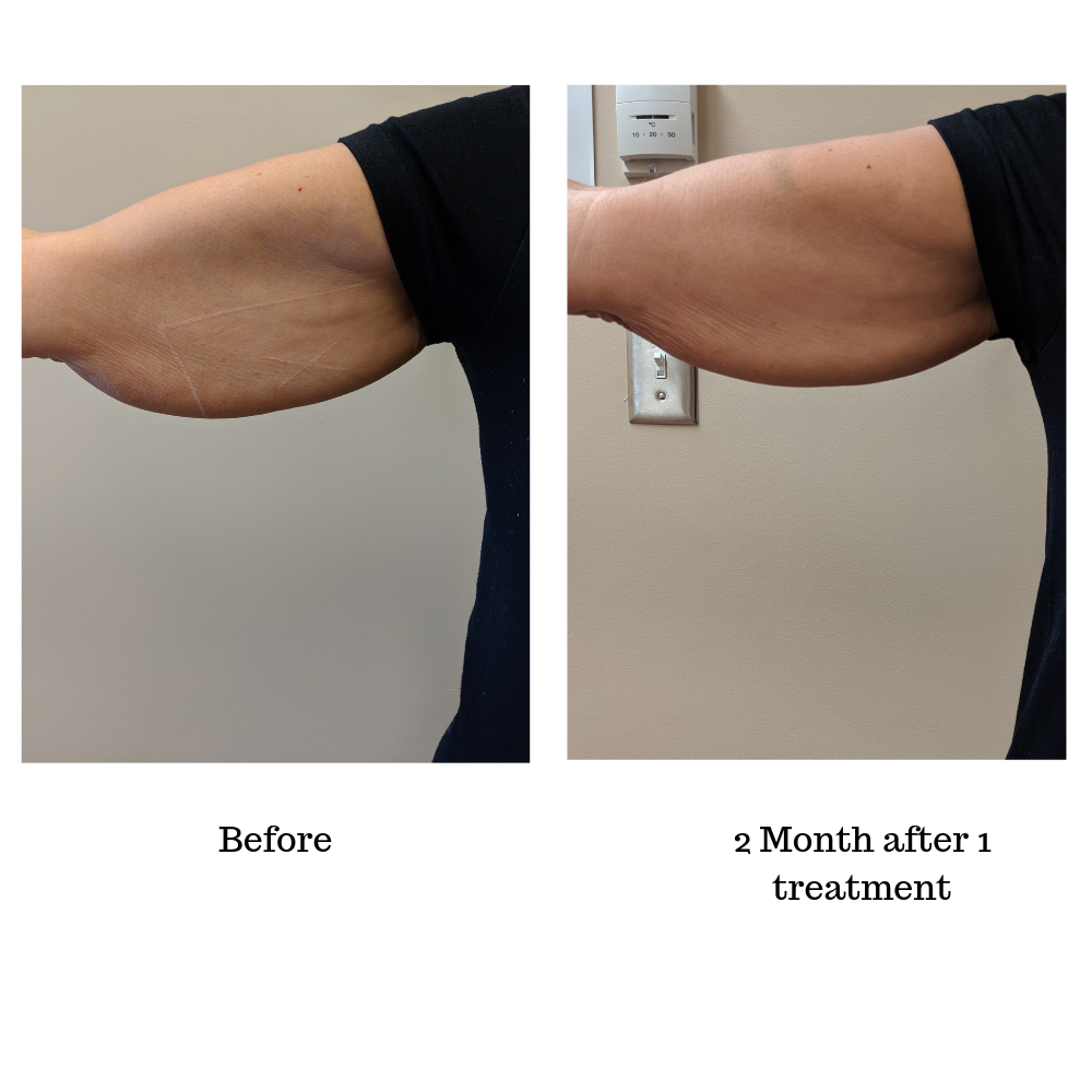 Arms before and after truSculpt 3D body sculpting treatment