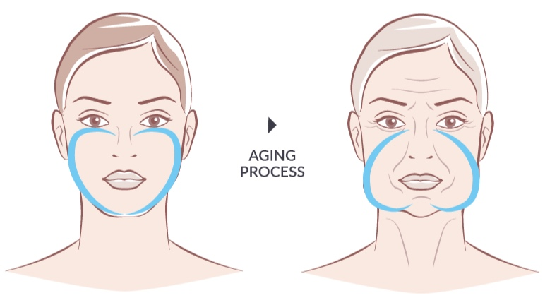 THE AGING PROCESS - As we age, we begin to lose collagen and elastin in our skin. This causes the layers of our skin to separate and become lax, bringing about the appearance sagging and wrinkles.