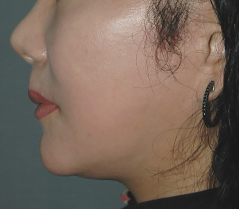 One month after single treatment of the scalp and face