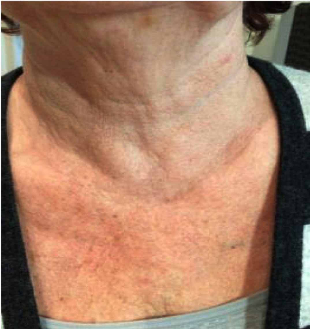One month after single treatment of the décolletage