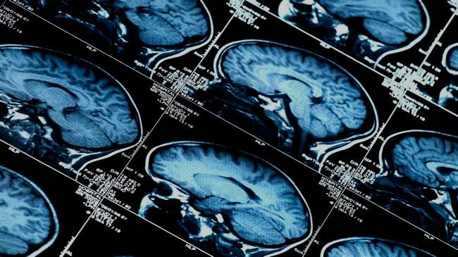 Neuroscience and Epigenetics -