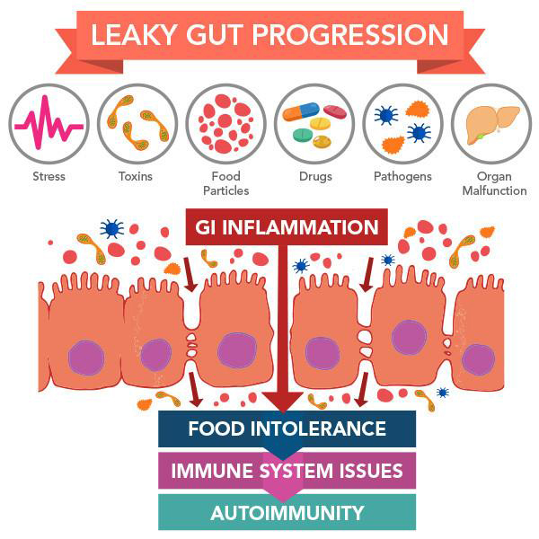 """Leaky Gut Syndrome: Breaking the Vicious Cycle"" - by Leo Galland, M.D.Altered intestinal permeability is a key element in the pathogenesis of many different diseases. Hyperpermeability initiates a vicious cycle in which allergic sensitization, endotoxic immune activation, hepatic dysfunction, pancreatic insufficiency and malnutrition occur; each of these increases the leakiness of the small bowel. Effective treatment of the Leaky Gut Syndromes requires several components: avoidance of enterotoxic drugs and allergic foods, elimination of infection or bacterial overgrowth with antimicrobials and probiotics, and dietary supplementation with trophic nutrients."