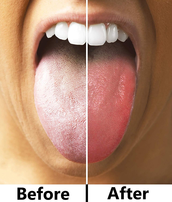 Tongue Scraper 2.jpg