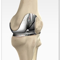 Orthopedic Injury or Surgery - REgain strength, mobility, and endurance following injury or surgical intervention more quickly and with less pain.— total hip or knee replacement— Acl reconstruction— meniscectomy/meniscal repair— microfracture— achilles repair— post fracture