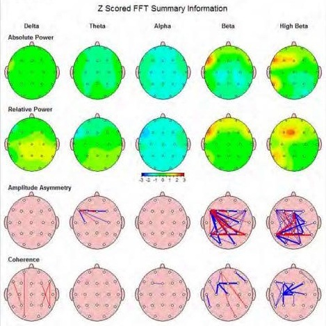 This map shows the various types of waves that are classified in neurofeedback practice.