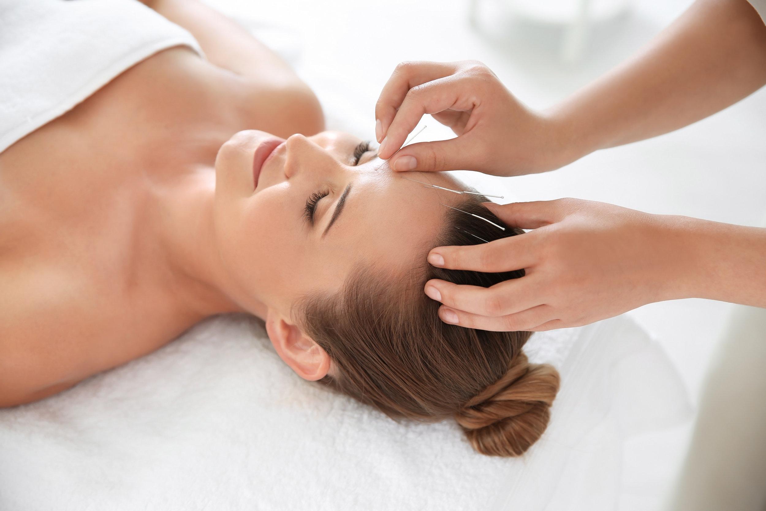 Resonant Acupuncture