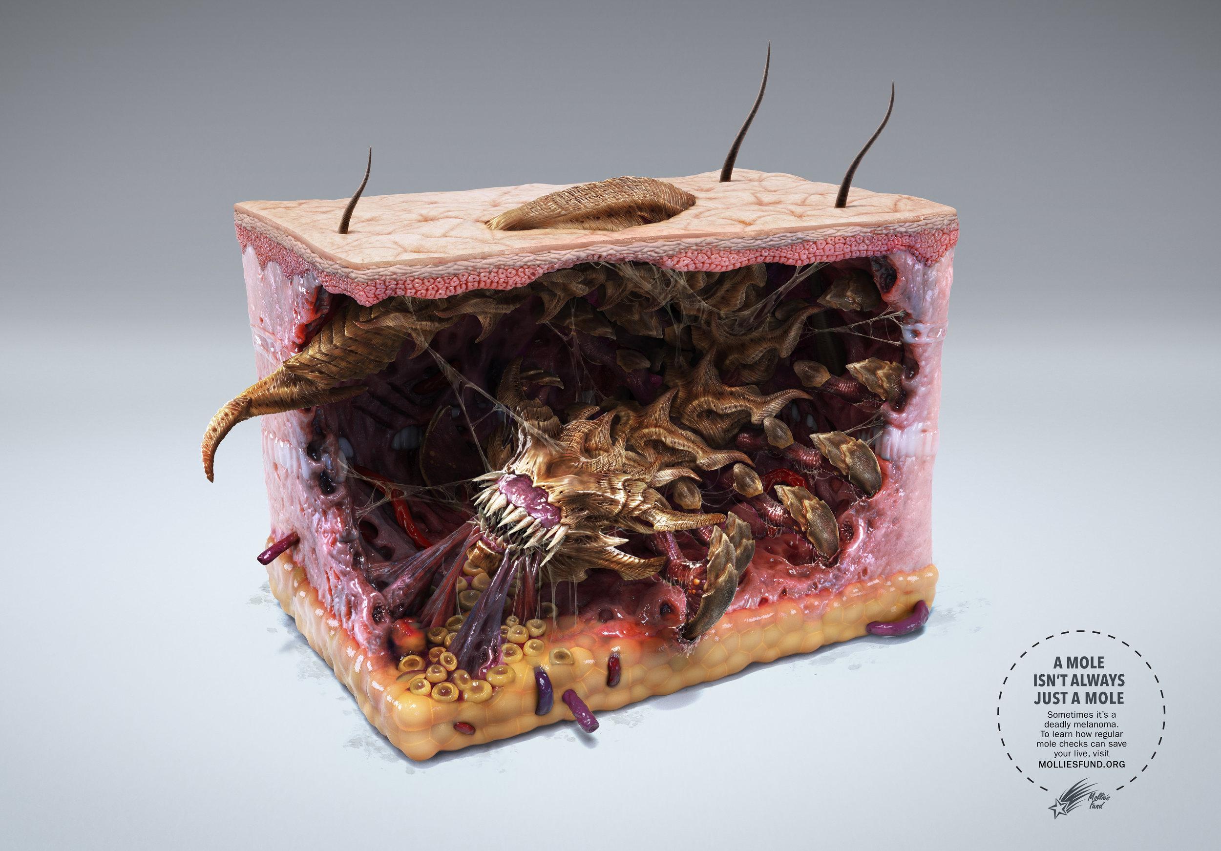 Melanoma+Monster+-+Insect.jpg