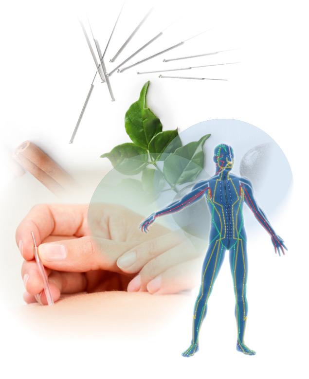 JodiSnider-Services-Acupuncture-1.jpg
