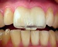 Viken Garabedian DDS - Laguna Niguel Dentist - TMJ