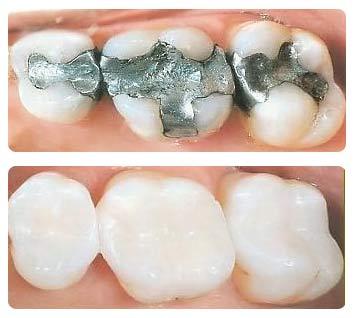 Viken Garabedian DDS - Laguna Niguel Dentist - Fillings