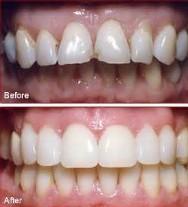 Viken Garabedian DDS - Laguna Niguel Dentist - Veneers