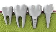 Viken Garabedian DDS - Laguna Niguel Dentist - Dental Implants