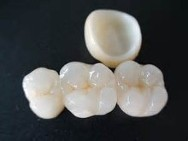 Viken Garabedian DDS - Laguna Niguel Dentist - Dental Bridges
