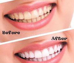 Viken Garabedian DDS - Laguna Niguel Dentist - Teeth Whitening