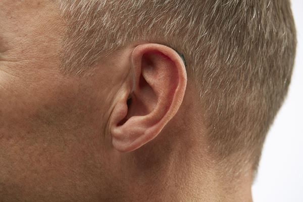 RECEIVER-IN-THE EAR (RIE) -