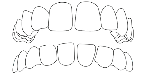 Gapped teeth.jpg