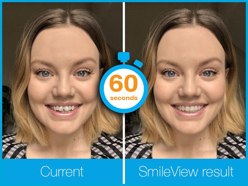 Invisalign Smileview in 60 seconds.jpg