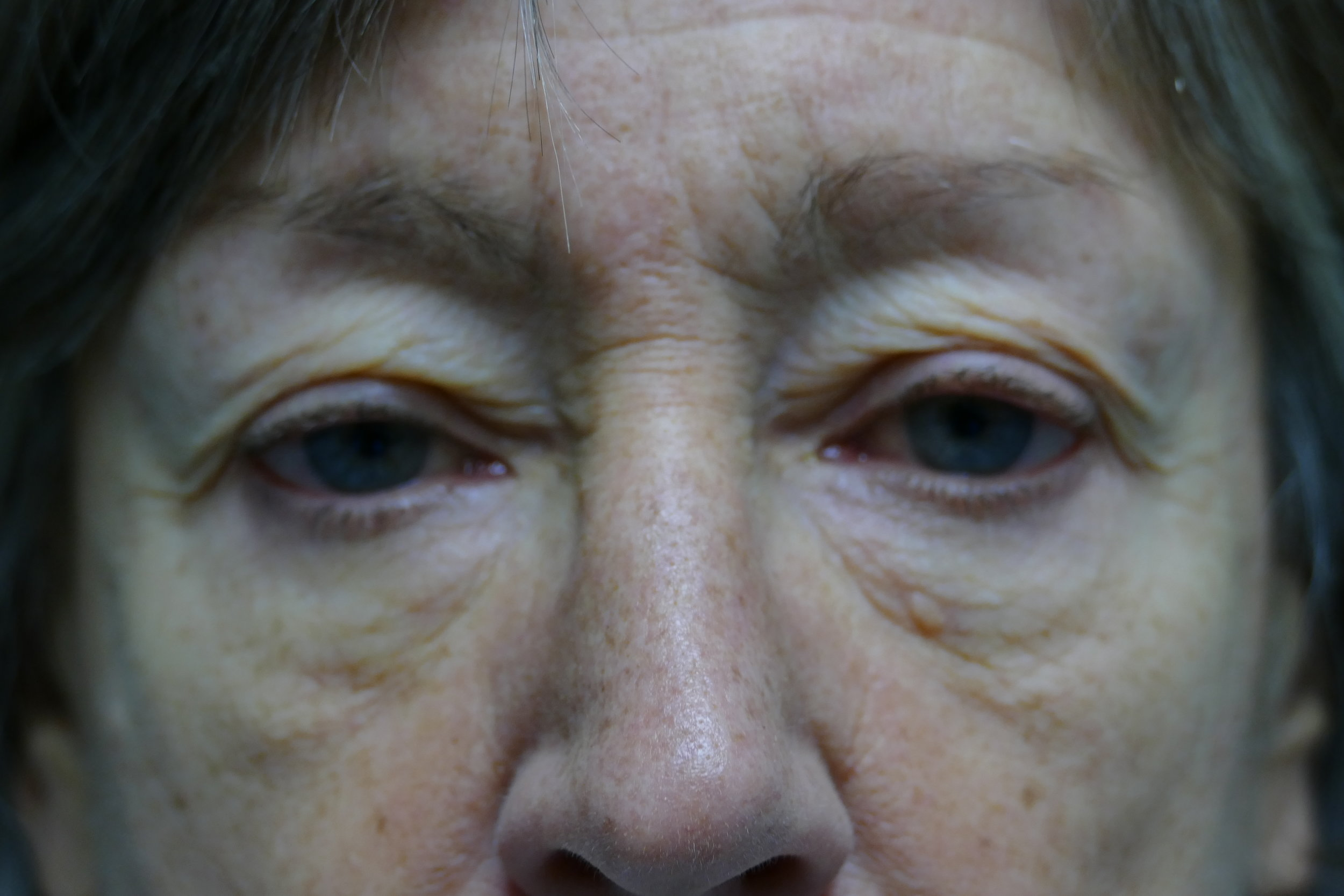 60 year old female before upper eyelid surgery.