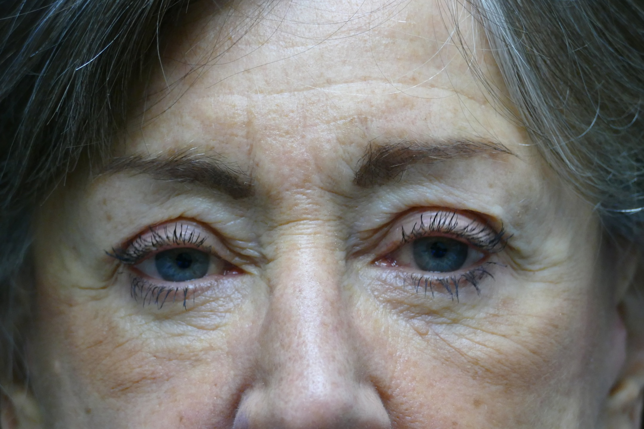 60 year old female 5 days post upper eyelid surgery using local anesthesia.