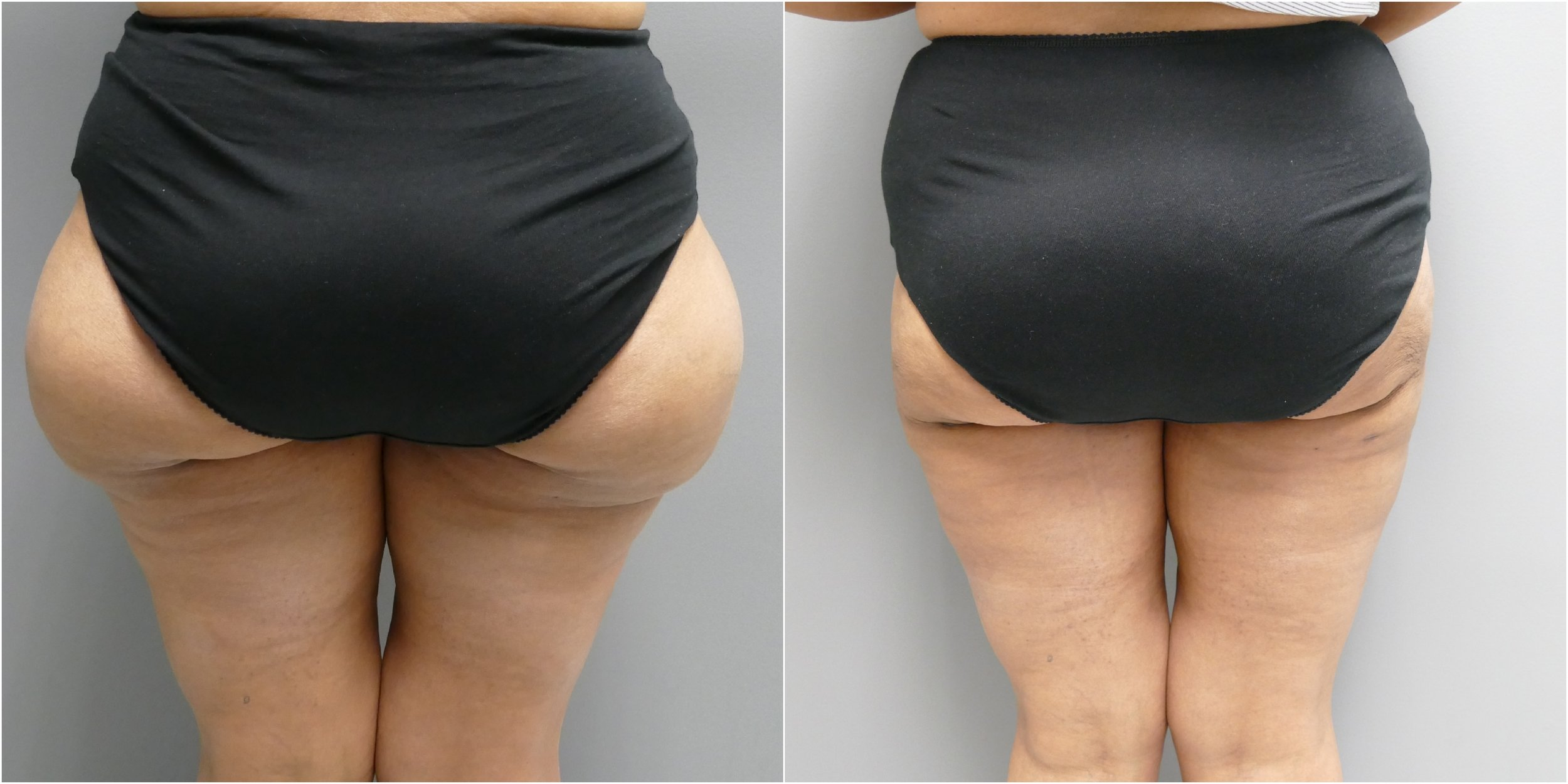 Combination Liposuction Modalities Yield Superior Body Sculpting Capabilities And Increased Patient Satisfaction.