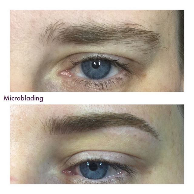 Eyebrows shaped and filled in with Microblading!  #microblading #beforeafter #microbladingbeforeandafter #transformation #fullbrows #eyebrowshape #micropigmentation #microstroking #featherbrow #cosmetictattoo #beautifuleyebrows #browstudio #browspecialist #eyebrowstudio #occhilashes #chicagobeauty #browbeforeandafter #eyebrowtransformation #eyebrowmicroblading