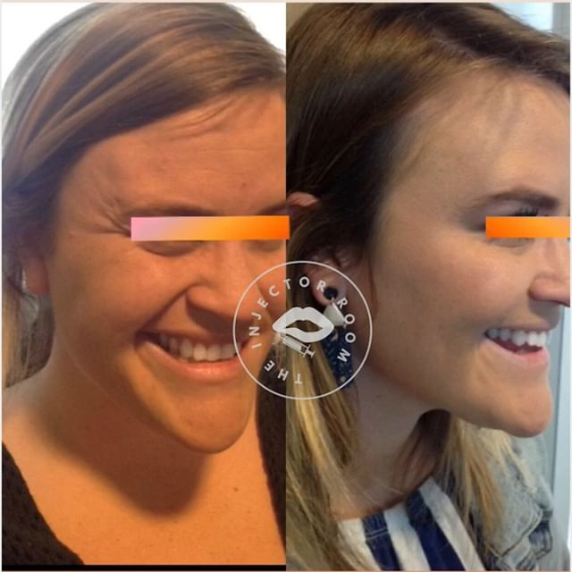 DYSPORT!! This lovely client of mine is a first-timer to the tox The left picture is her before photo and the right photo is her 2 week follow up appointment.