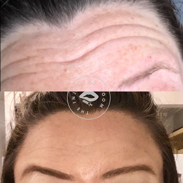 BOTOX! This lovely client of mine has received the tox in the past... The top picture is her before photo (she provided this before picture) and the bottom image is her after photo.