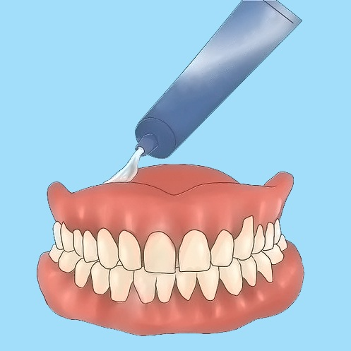 APPLYING ADHESIVE TO A DENTURE