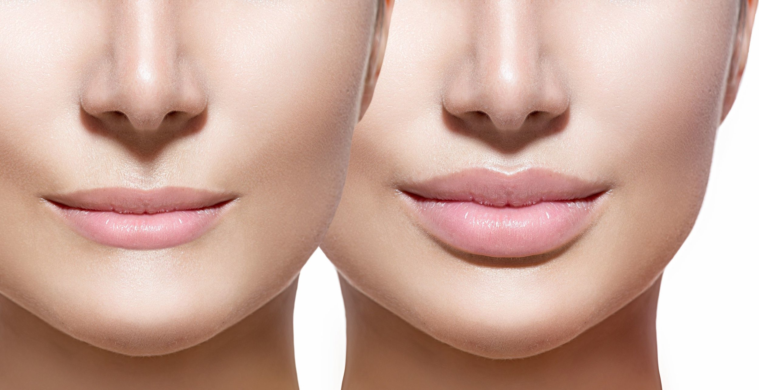 how-to-get-fuller-lips-options-1.jpg