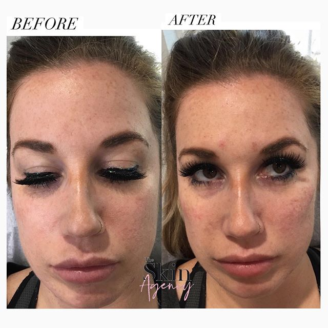 💉CHEEK FILLER 💉 We used 1 syringe of restalyne lyft to give her more cheek and a pretty lift.  With our fall specials Lyft is $520 per syringe and Voluma is $580 a syringe.  Call 818-308-7394 or DM us to book an appointment ✨
