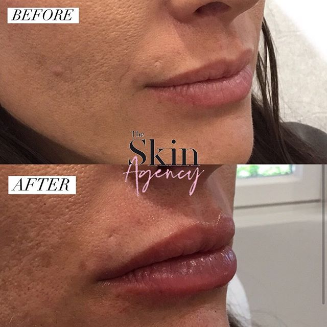 👄 LIP FILLER 💉 Lip injections are one of the most popular treatments at @theskinagency! The patient used 1 syringe of juverderm ultra for this natural plump!  Keep up with our instagram story to find more details on our lip filler specials ✨