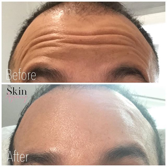 Botox™️ for Men 🧔🏼🧔🏽🧔🏾🧔🏿🧔🏻The treatment doesn't mean you lose your edge. You'll see subtle results and still look yourself. So, no one has to know if you don't want them to. 💲7.99 per unit {a minimum of 20 units} Call to schedule your appointment #theskinagency