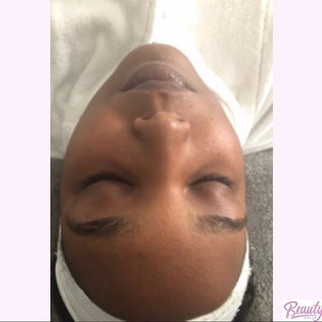 Hotel Facial Appointment - Before and After Glow Treatment ✨ #Beautycallsdc is mobile and offers several services, such as hotel facial appointments. All facials are customized for the client's specific needs.