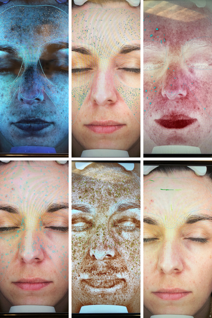 Medical Spa Consultation Face Scans