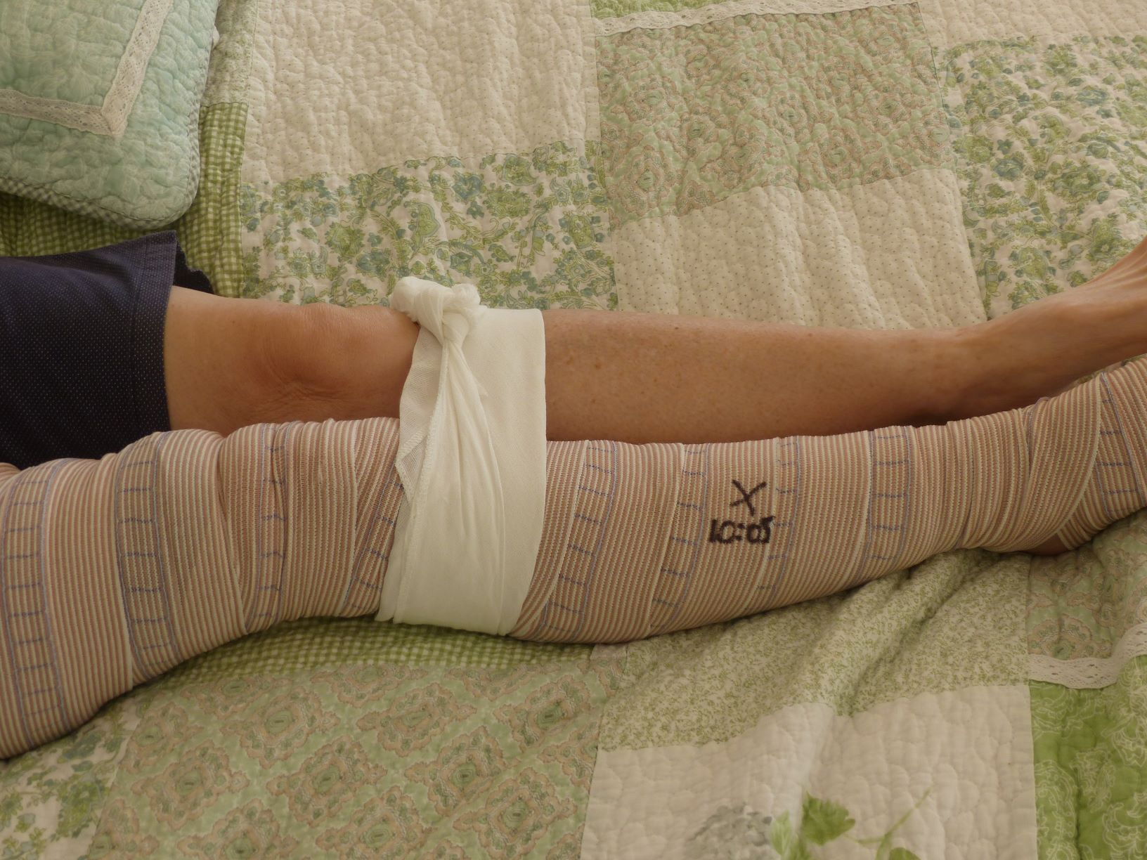 - Apply a wide bandage firmly over the bite site.Starting at the fingers or toes, apply a second pressure bandage around the limb, working upwards as high as possible (over clothing is fine). The bandage should be tight enough to barely allow a fingertip to slightly raise the edge, but not so tight as to affect circulation. The bandage may remain on for hours.Mark the bandage with a pen over the bite site to assist hospital staff.To help immobilise the limb, apply a splint that will keep the limb stationary.