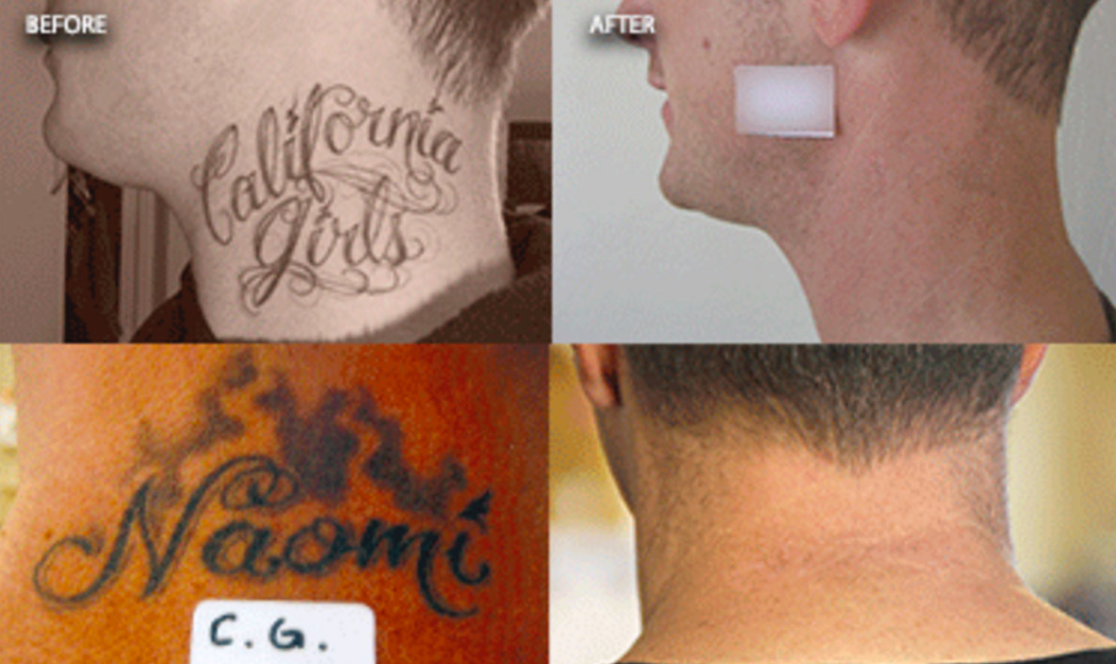LaserTattooRemovail_Detail_02.png