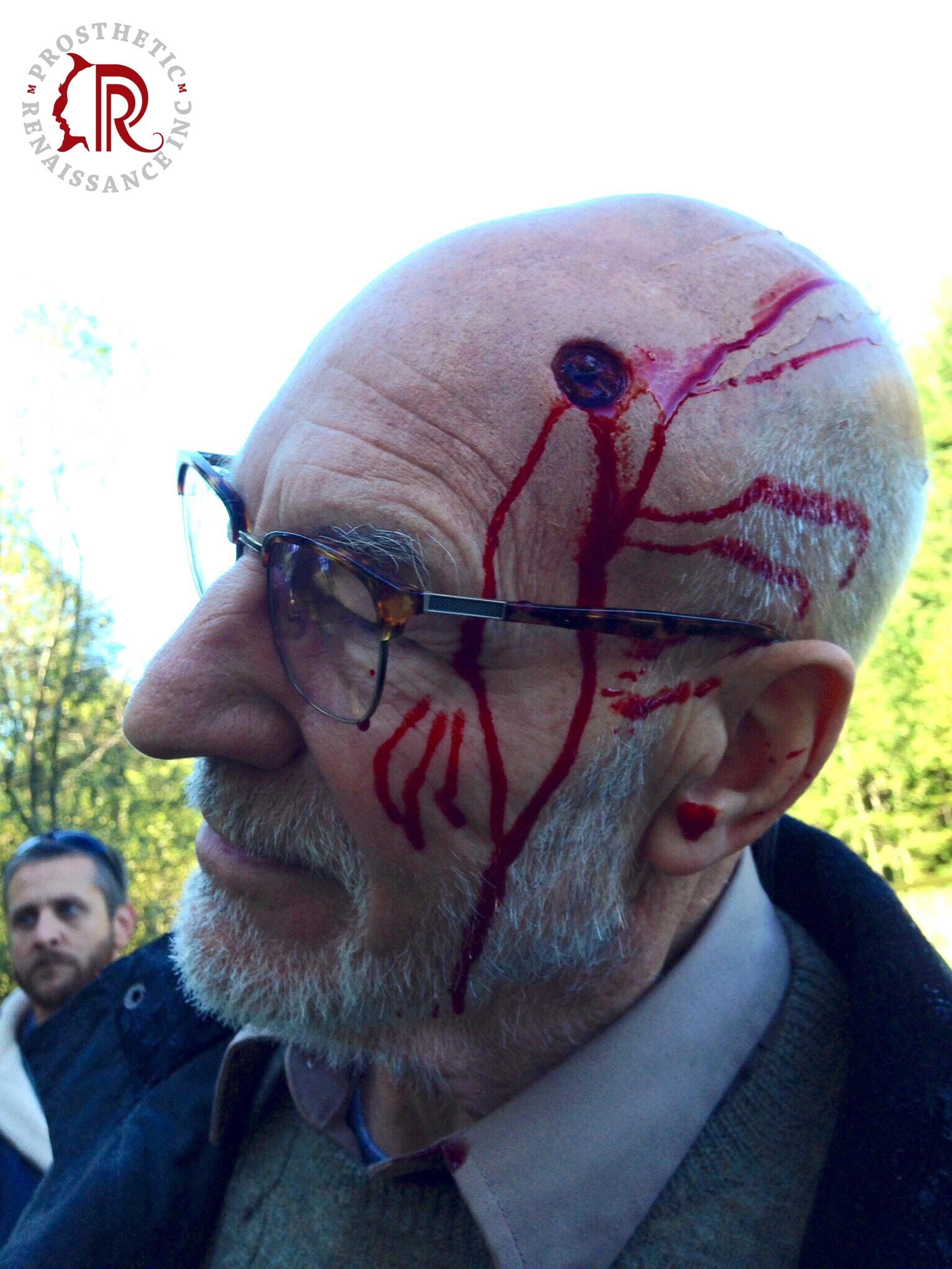 11.Head-Bullet-Wound.jpg
