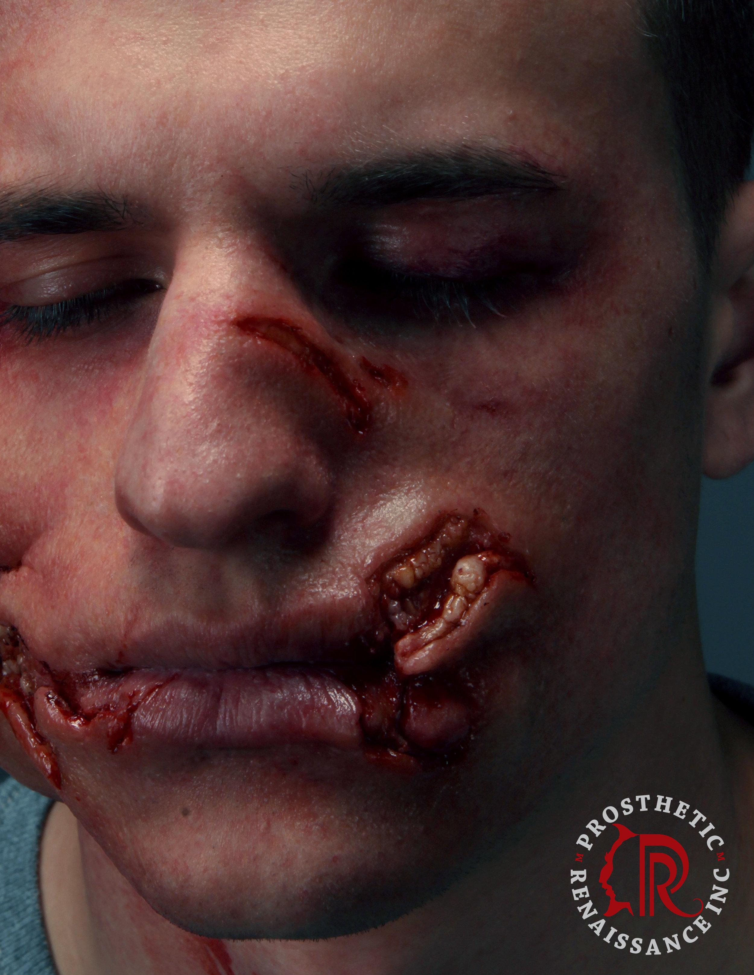 15.ViolentAttackFaceSet12.jpg