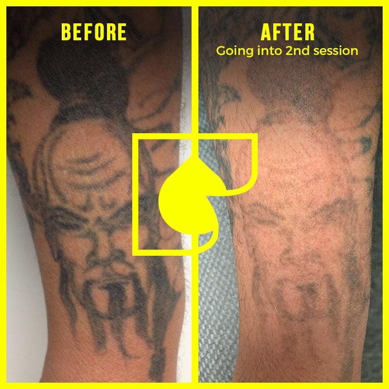 Tattoo Removal, Inc.