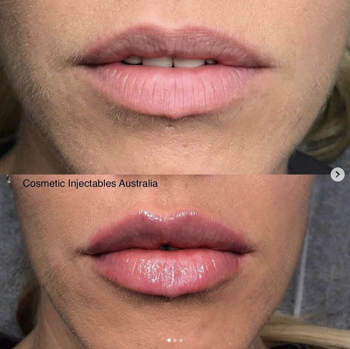 COSMETIC INJECTABLES - Cosmetics