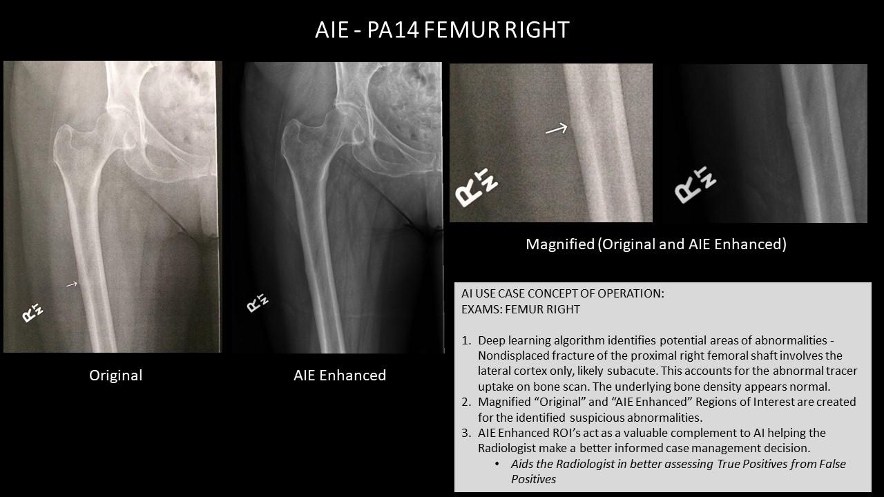AI Use Case AIE - PA14 FEMUR RIGHT.jpg