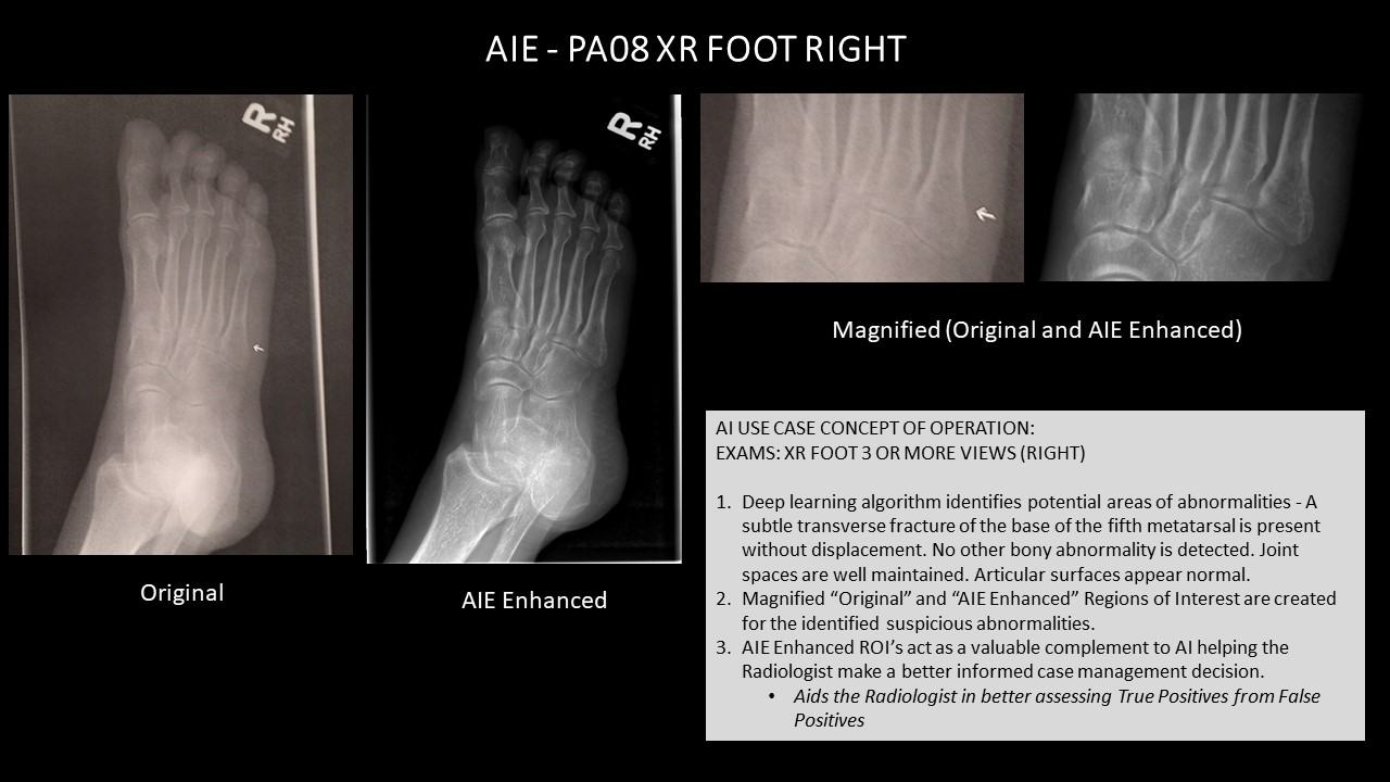 AI Use Case AIE - PA08 XR FOOT RIGHT.jpg