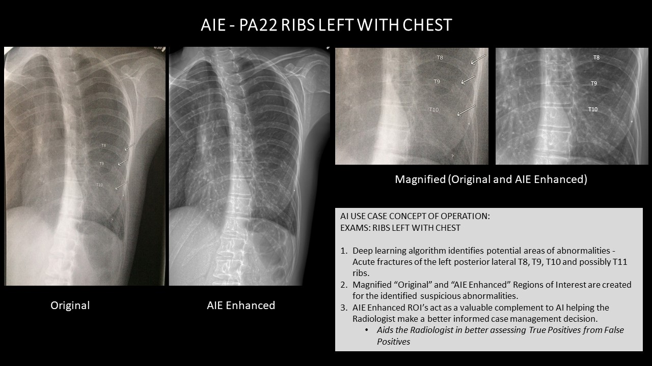 AI Use Case AIE - PA22 RIBS LEFT WITH CHEST.jpg