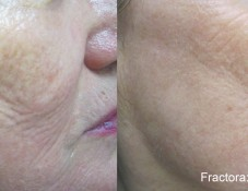 before and after of fractora treatment for wrinkle reduction in yorktown, ny