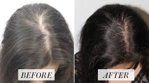 Hair regrowth after PRP treatment sessions in yorktown heights ny