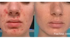 before and after of acne and scar reduction with the use of Fractora treatment yorktown heights ny